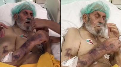 Skandal görüntü: Yoğun bakım hastasına sigara verdiler