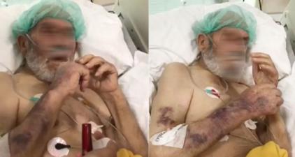 Hastanedeki skandal görüntüyle ilgili gerçek ortaya çıktı