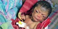 3 Günlük Bebek Yaşlı İnsan Gibi Görünüyor
