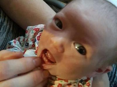 Ön Alt Dişleriyle Doğdu