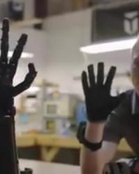 Geliştirdiği Robotik Kol Protezi Umut Oldu