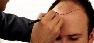 Saç Ekimi Operasyonu Olmak İsteyen Adaylara Tavsiyeler