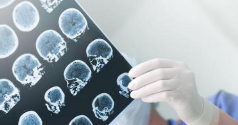 Beyin pili ile parkinson hastalığınızı yenebilirsiniz