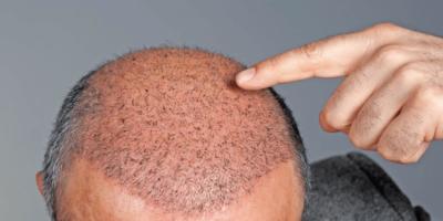 Saç Ekimi İçin Ne zaman Başvurulmalı?