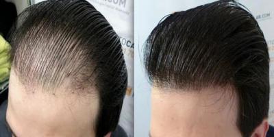 Saç Ekim'i Nedir? Nasıl Yapılır?