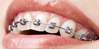 Ortodontik Tedavi Gereklimidir?