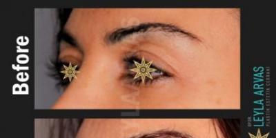 Göz Kapağı Estetiği Nedir? Göz Kapağı Estetiği Nasıl Uygulanır?